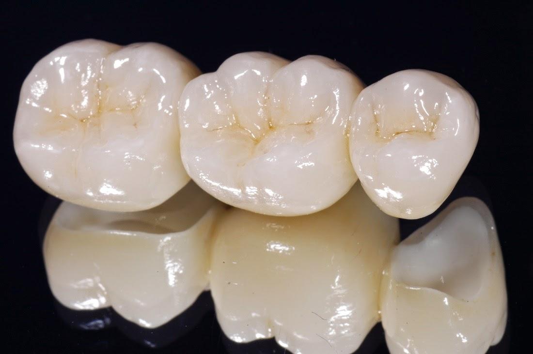 răng sứ Ceramill Zolid